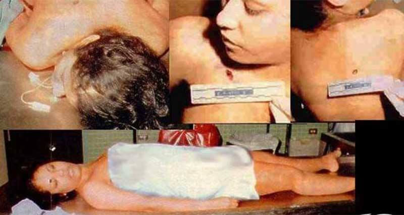 Impactantes Fotos De Cadaveres De Famosos further BWVkaWNhbCBleGFtaW5lciBvZmZpY2Vy together with Murder New Evidence Shows Clinton Attorney With Bullet Hole In Neck besides Robin Williams Suicide Note together with Robin Williams Family At Odds Over Actors Estate. on robin williams crime scene